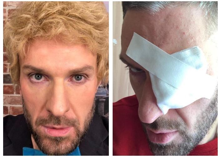 Строгая диета привела к потере зрения: сын Татьяны Васильевой ослеп на левый глаз